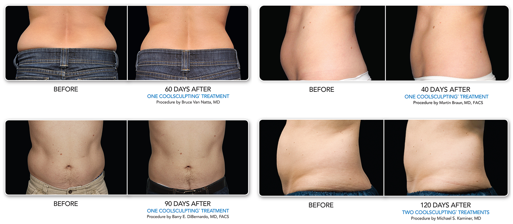 patient photos before and after coolsculpting procedure