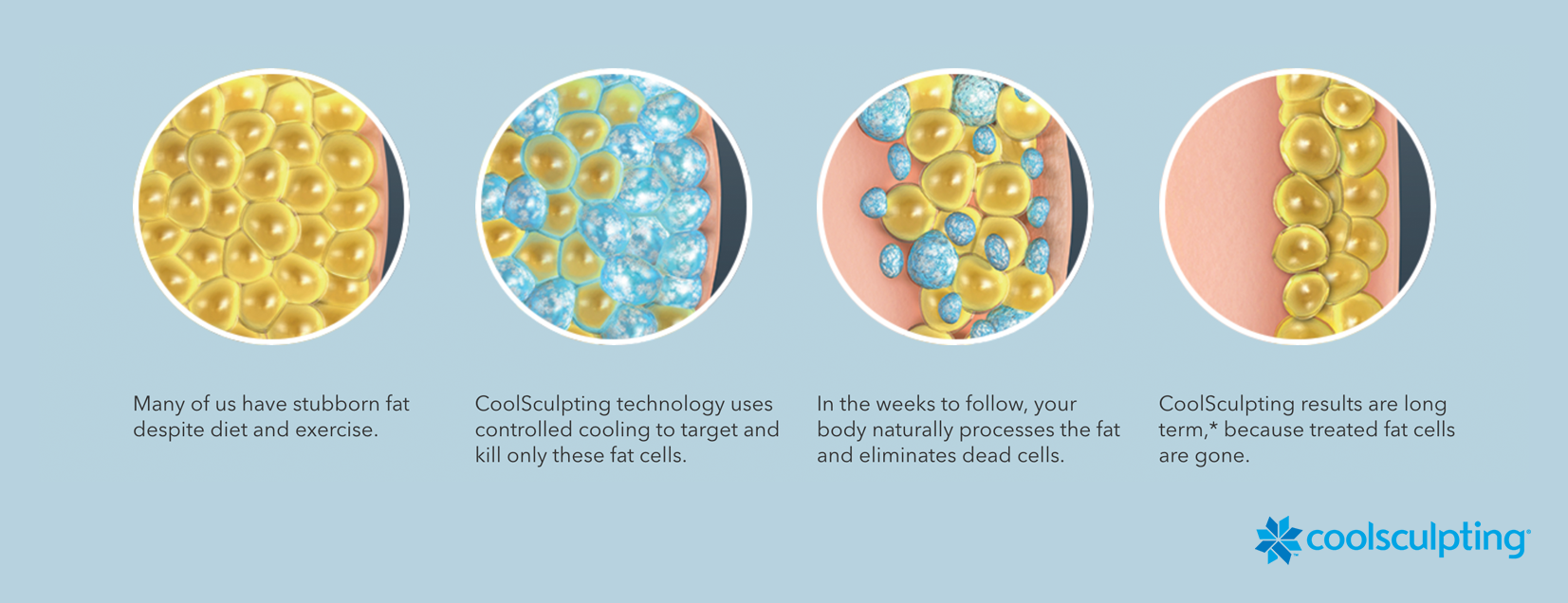 infographic of the coolsculpting process