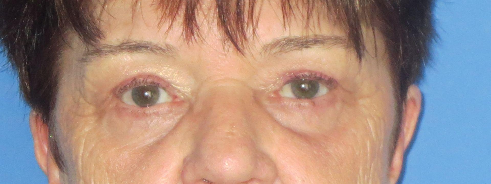upper lower blepharoplasty after 2