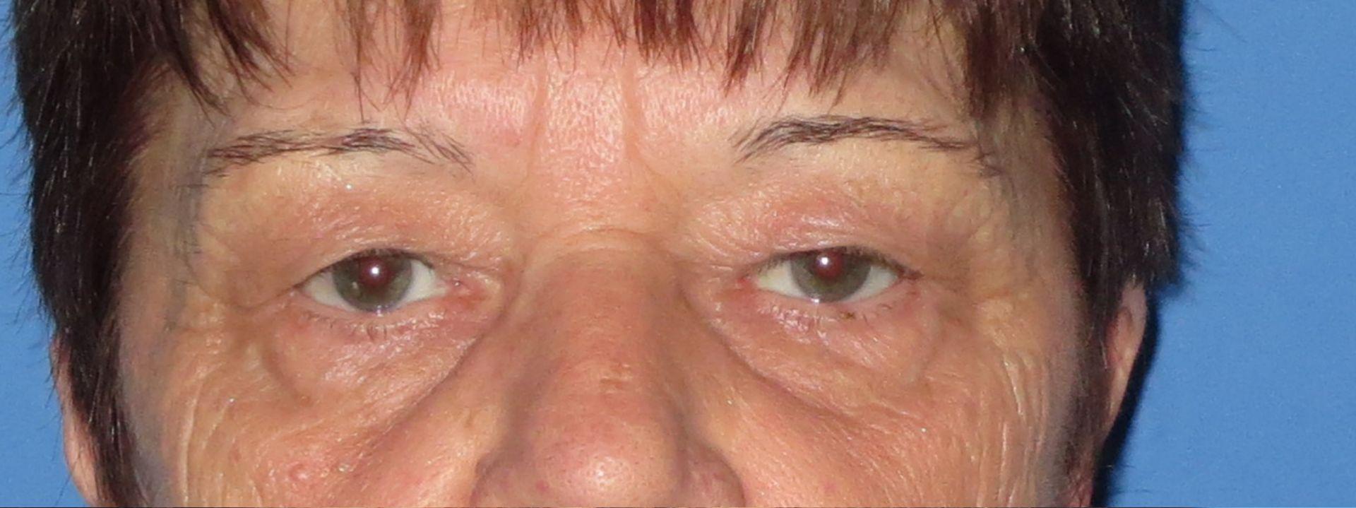 upper lower blepharoplasty before 2
